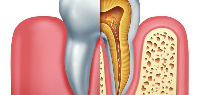 根管治療-抽神經-前牙美學專家-沈志容醫師