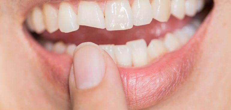 門牙斷裂-門牙缺角-沈志容醫師
