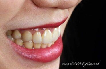 沈志容醫師|前牙美學專家推薦案例-全瓷貼片