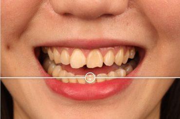 門牙缺角影響美觀嗎?推薦用陶瓷貼片修復