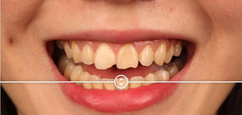 門牙缺角影響美觀,經由陶瓷貼片修補前後比對圖