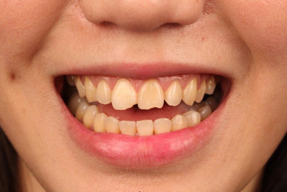 門牙缺角影響美觀,經由陶瓷貼片修補前照片