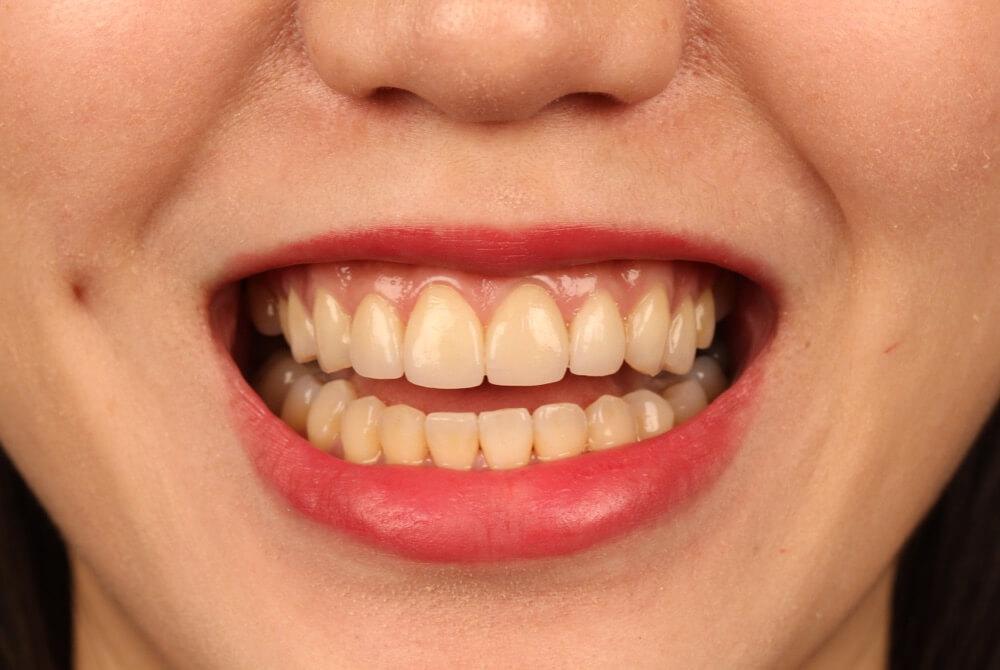 門牙缺角影響美觀,經由陶瓷貼片修補後照片