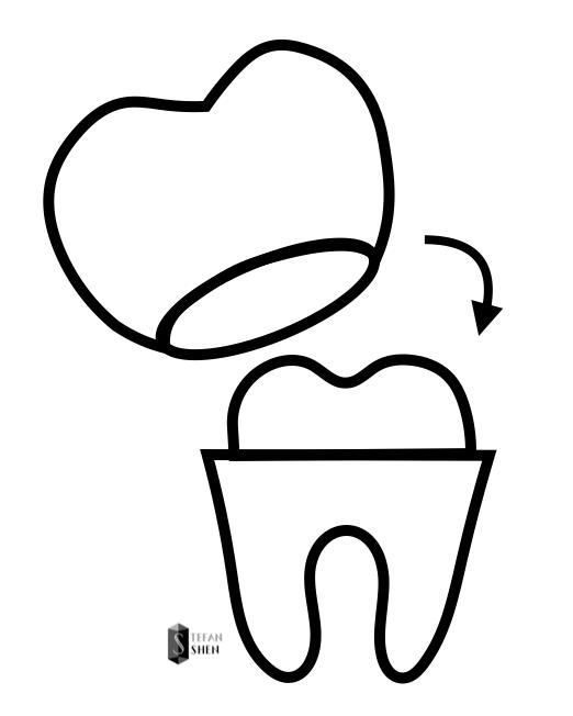 什麼是瓷牙貼片-全瓷冠介紹
