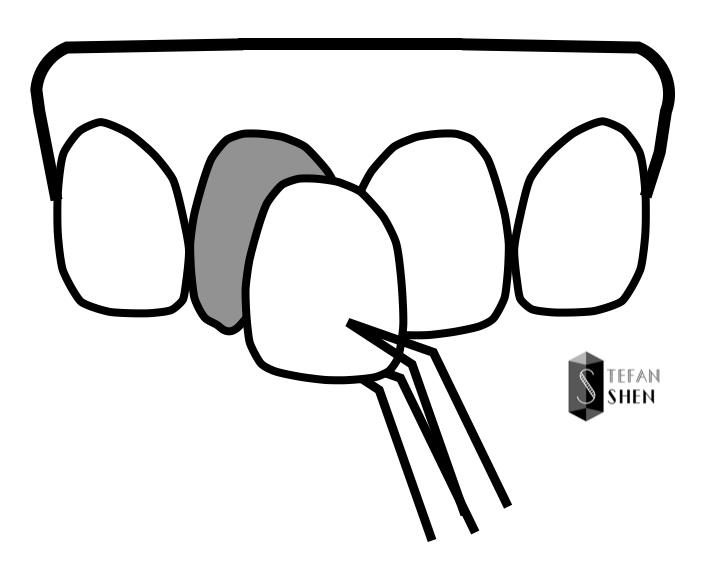 牙齒美白貼片-陶瓷貼片示意圖-前牙美學專家-沈志容醫師
