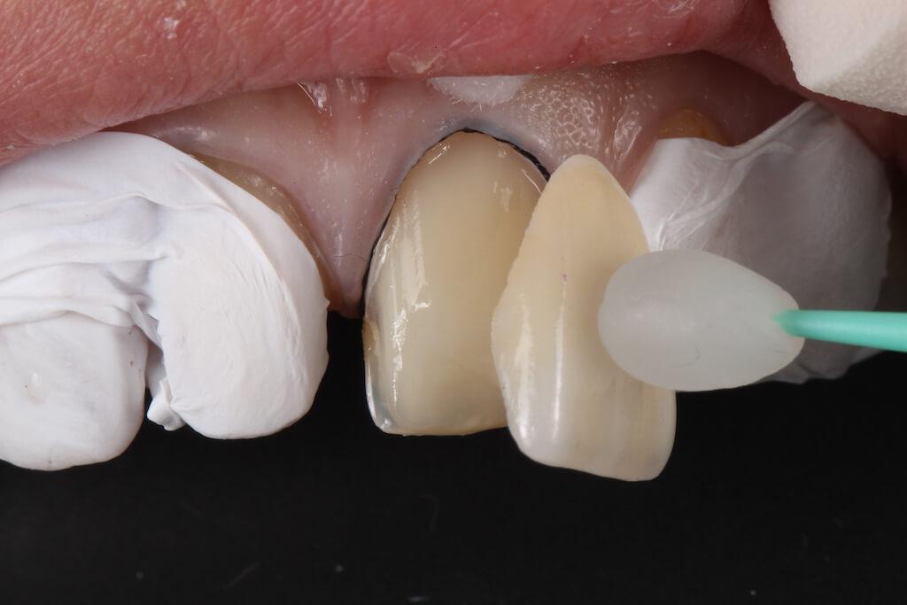 什麼是瓷牙貼片-貼上陶瓷貼片-前牙美學專家-沈志容醫師