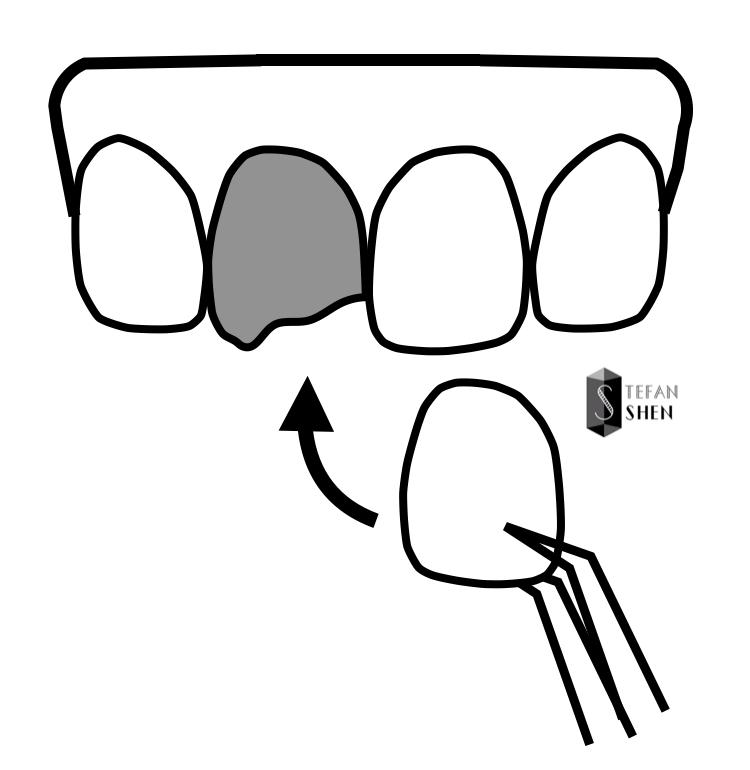 什麼是瓷牙貼片-陶瓷貼片修復缺牙示意圖-前牙美學專家-沈志容醫師