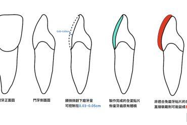 免磨牙瓷牙貼片示意圖-樹脂貼片