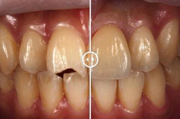 摔車門牙斷裂怎麼辦? 推薦瓷牙貼片微創修復