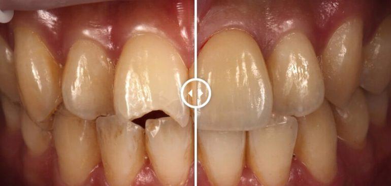 全瓷貼片修復案例-摔車門牙斷裂-瓷牙貼片修復前後比對