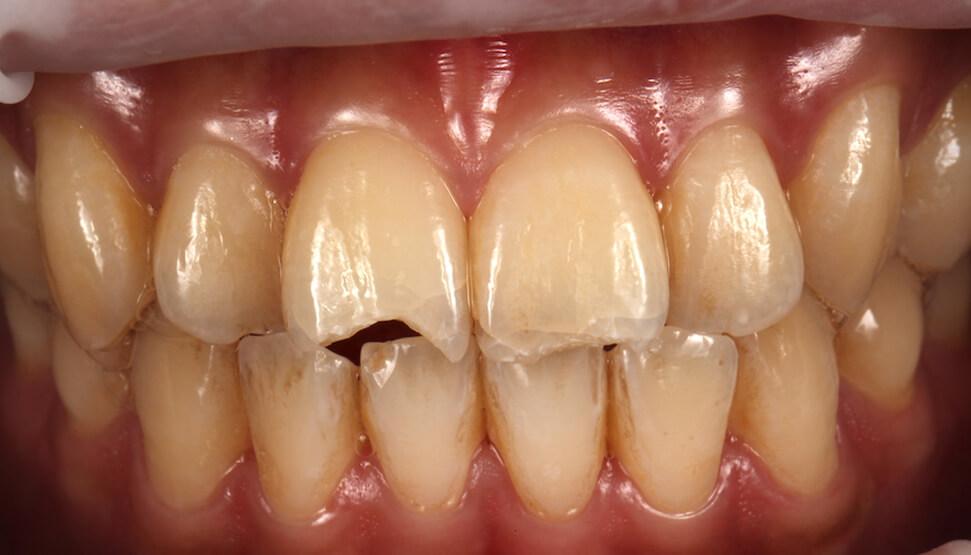 全瓷貼片修復案例-摔車門牙斷裂-瓷牙貼片修復前