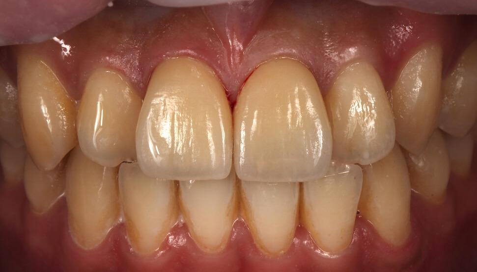 全瓷貼片修復案例-摔車門牙斷裂-瓷牙貼片修復後