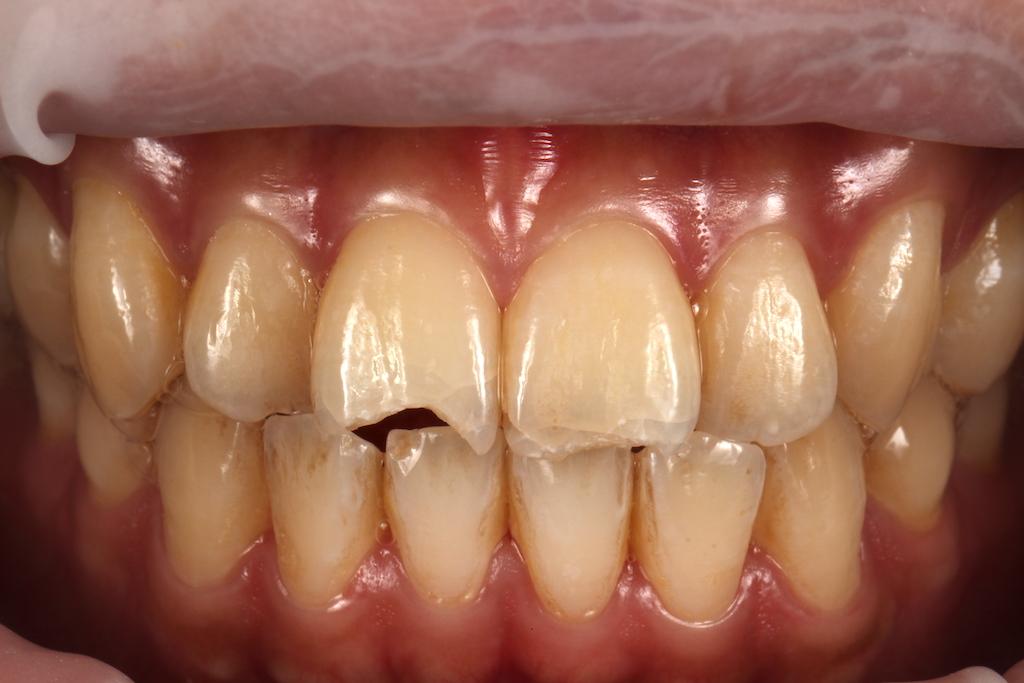 門牙斷一小塊-門牙斷裂修補案例-全瓷貼片