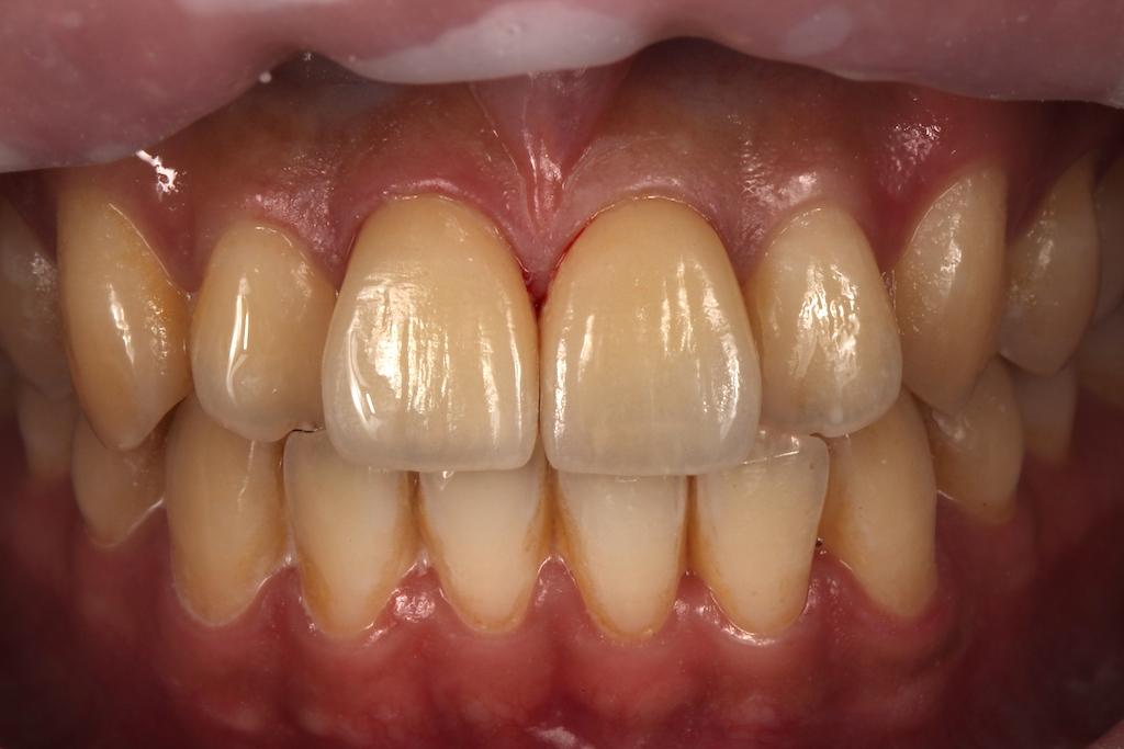 患者經前牙美學專家沈志容醫師進行瓷牙貼片與微創修補後,原本破裂的門牙已經完全修復,並更加美觀