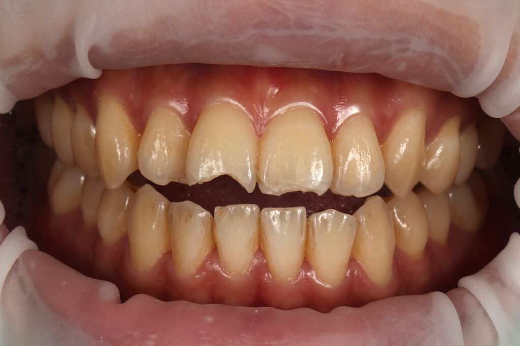 呂先生因摔車門牙斷裂,在進行瓷牙貼片修復前的牙齒狀況