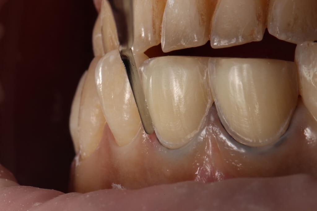 高倍率牙科專用顯微鏡-修磨齒質-瓷牙貼片-門牙斷裂修補案例