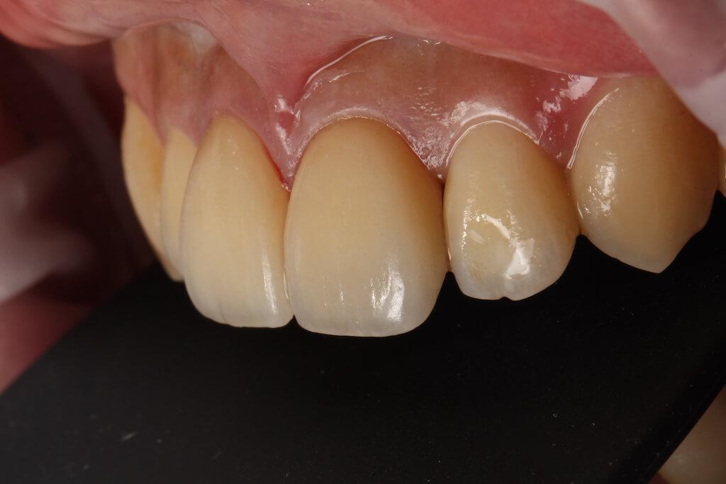 在做完精細的修磨及瓷牙貼片修復後,牙齦及牙齒表面更為細緻完美