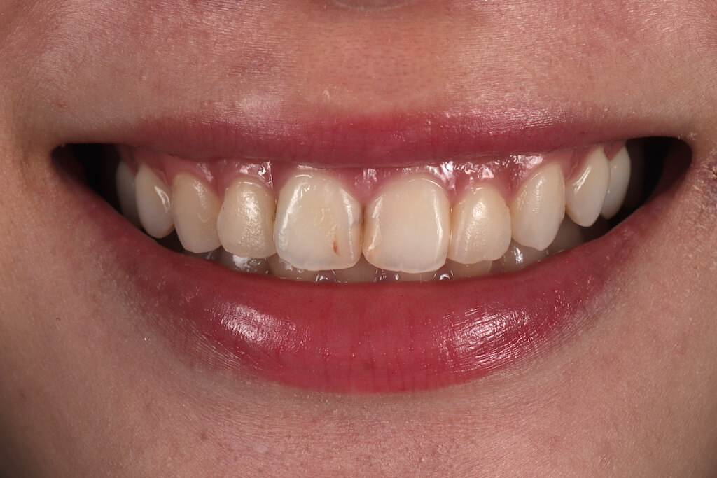 台中桃園牙齒美白推薦,沈志容醫師,專長全瓷冠、牙齒貼片、DSD數位微笑設計等前牙美學服務