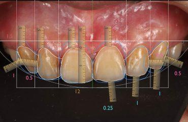 前牙美學專家-沈志容醫師推薦案例-DSD數位微笑設計-1