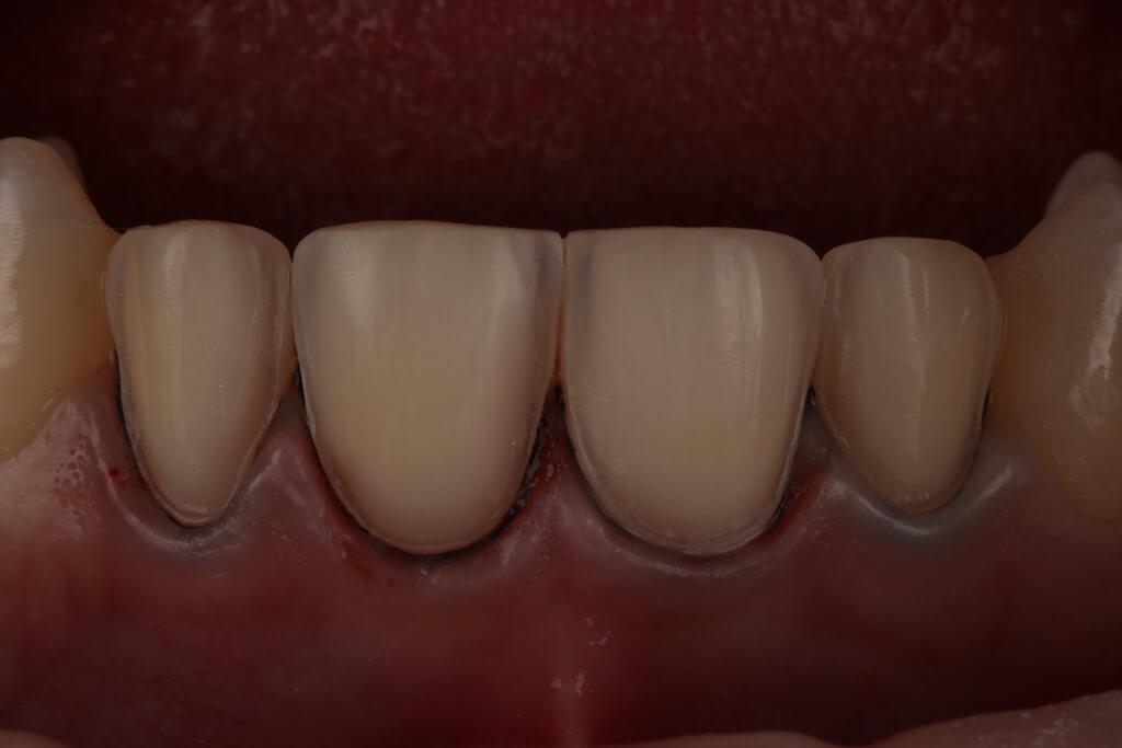 瓷牙貼片磨牙-顯微鏡微創磨牙下的牙齒