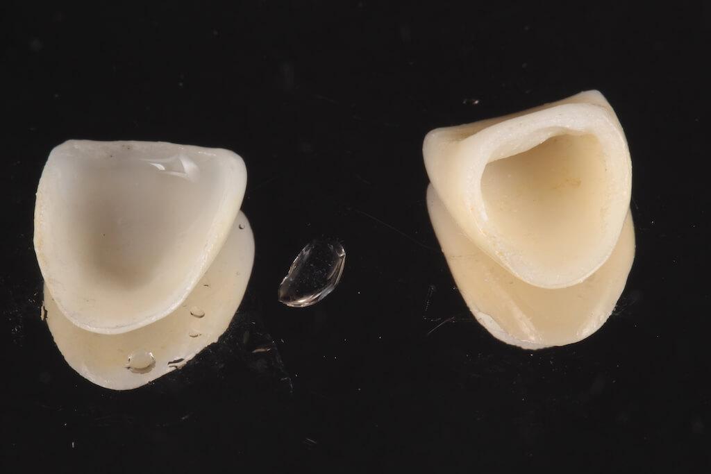 瓷牙貼片跟全瓷牙冠比較圖, 左邊是全瓷貼片,右邊是全瓷牙冠