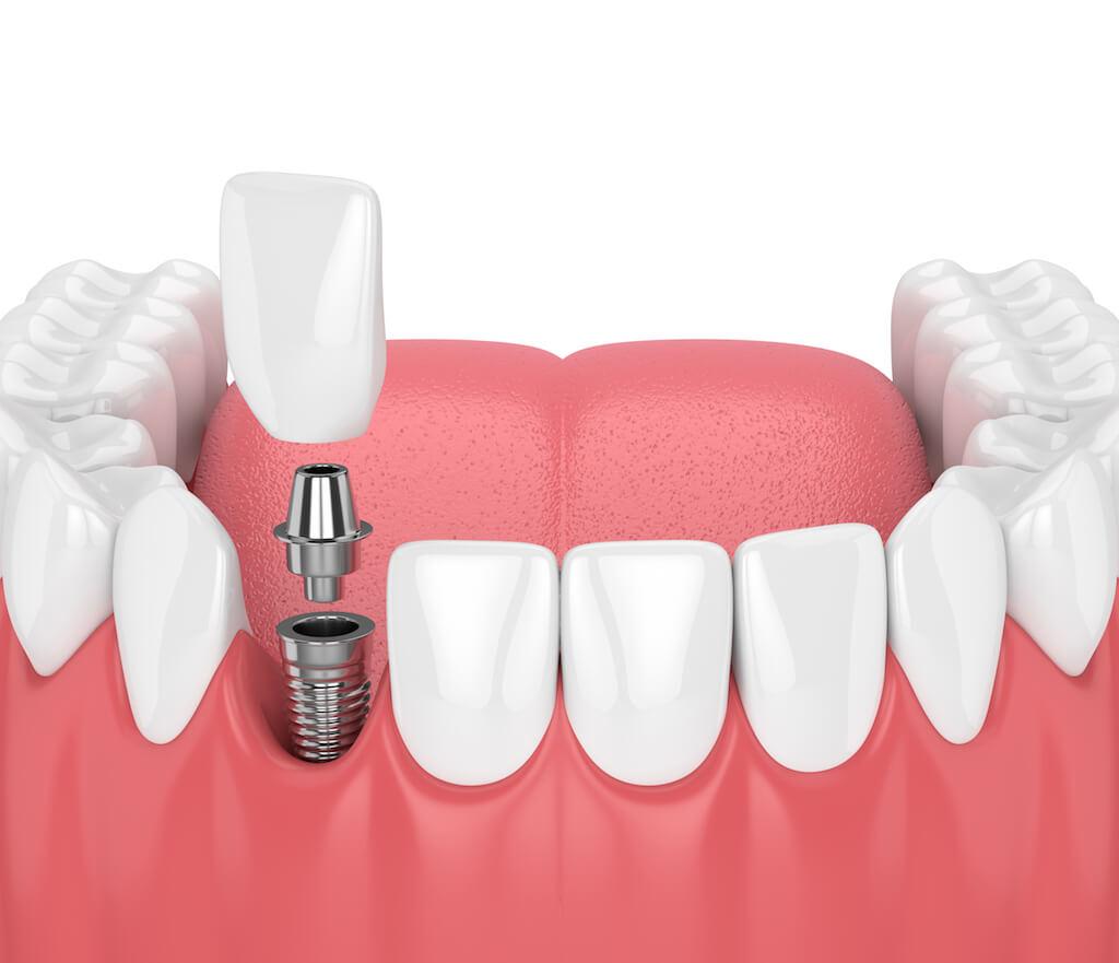 門牙植牙-前牙美學專家-沈志容醫師
