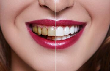 陶瓷貼片-牙齒美白貼片-沈志容醫師