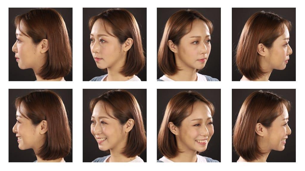 DSD數位微笑設計如何進行-各角度分析