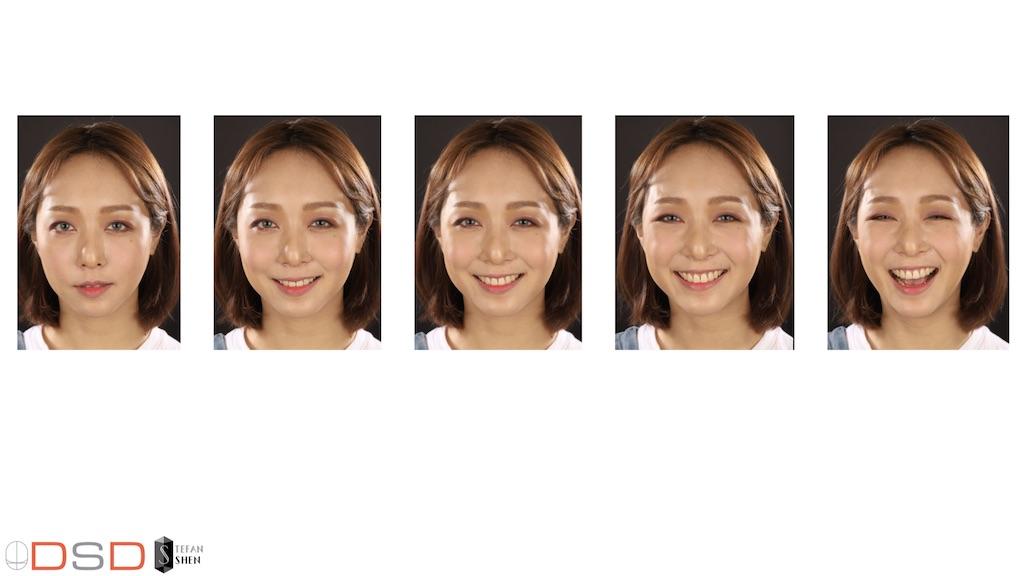 DSD數位微笑設計如何進行-正面各種笑容分析