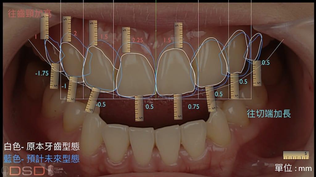 DSD數位微笑設計如何進行-牙齒形狀分析