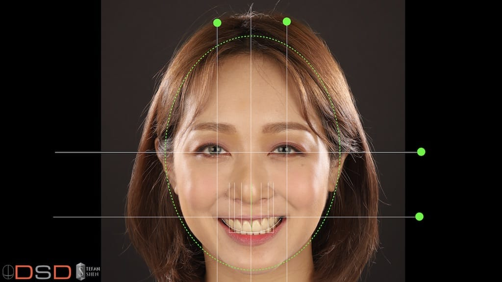 DSD數位微笑設計如何進行-笑容分析