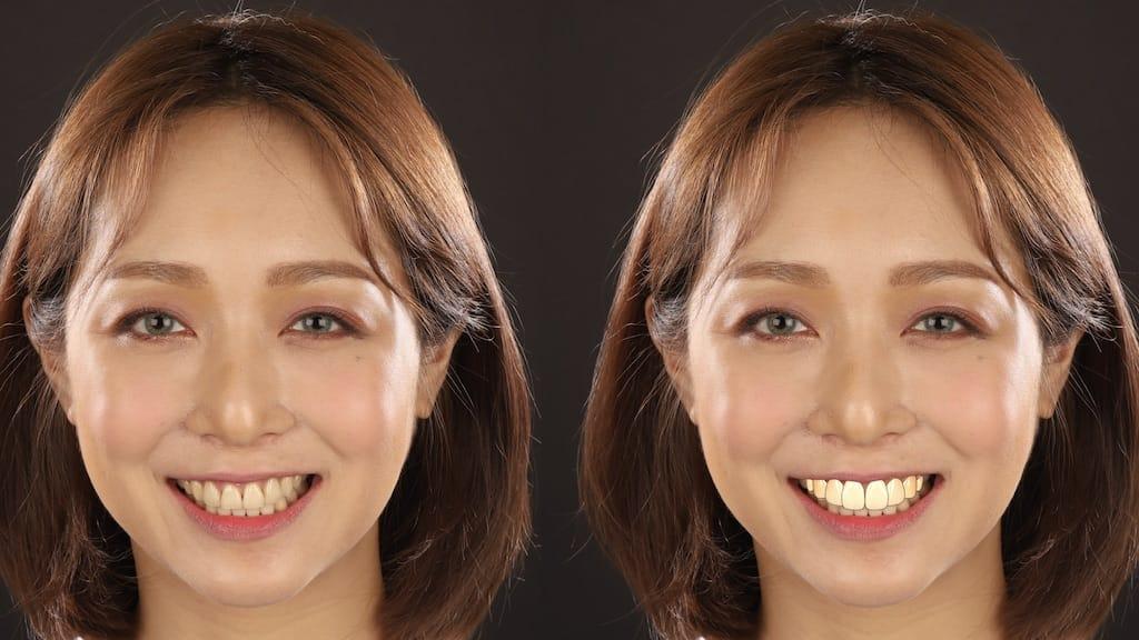DSD數位微笑設計如何進行-笑容模擬