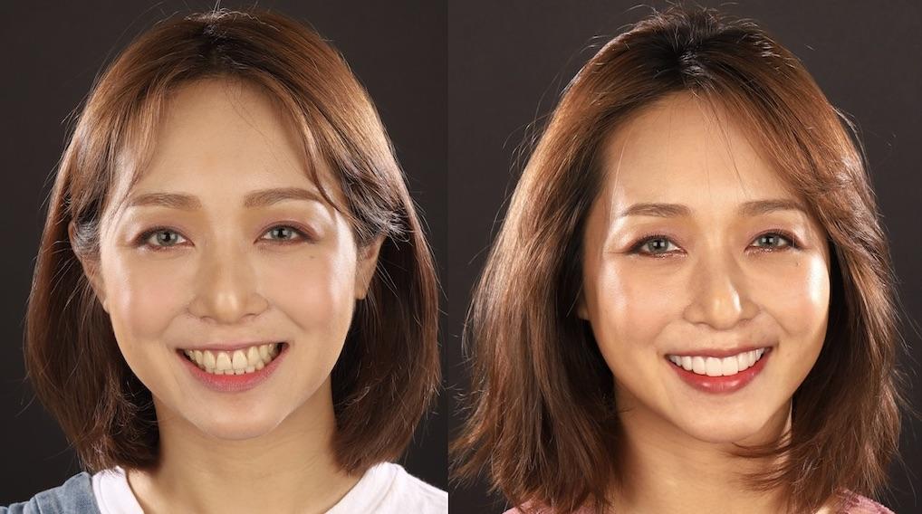 DSD數位微笑設計如何進行-試戴瓷牙貼片前後對比