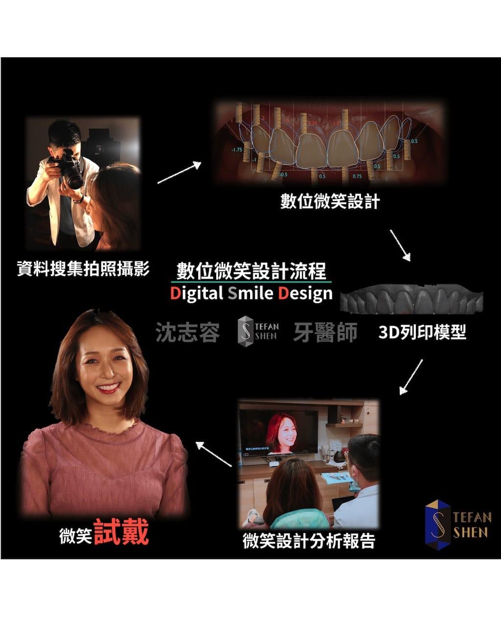 DSD數位微笑設計流程