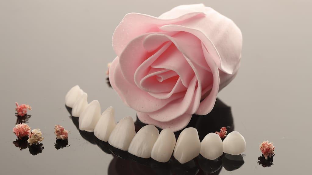 DSD數位微笑設計-美齒貼片-瓷牙貼片