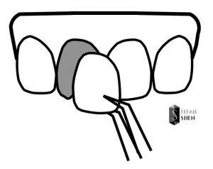 牙齒貼片如同給牙齒貼彩繪指甲示意圖