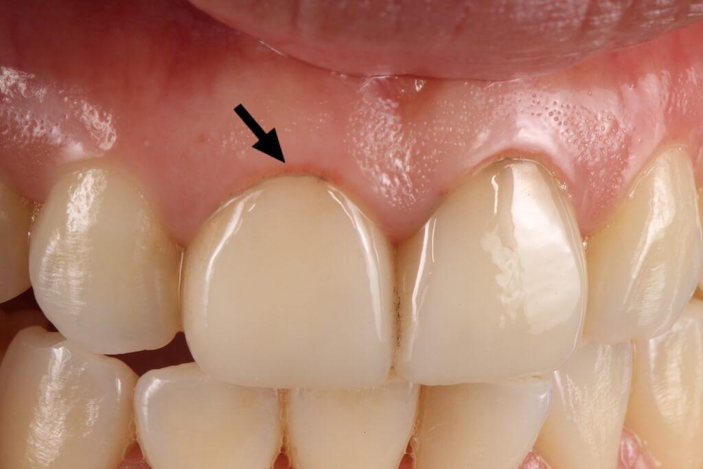 非使用牙科專用顯微鏡-陶瓷貼片-牙齦邊緣染色