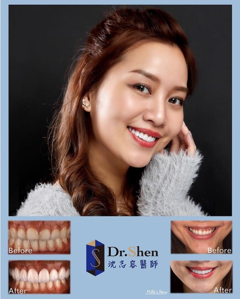 前牙美學專家-沈志容醫師推薦案例-香港空服員Milla-Instagram1