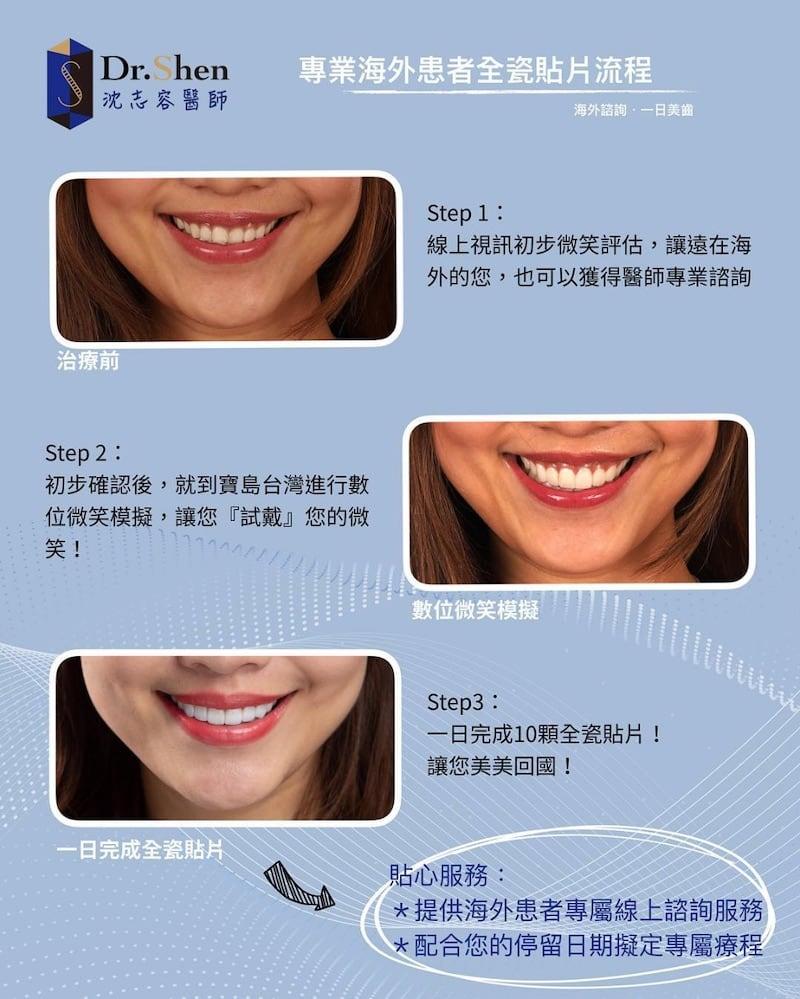 前牙美學專家-沈志容醫師推薦案例-香港空服員Milla-Instagram2