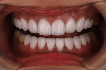 沈志容醫師牙齒美白案例-上下排陶瓷貼片-選擇超白全瓷貼片依然保持自然漸層
