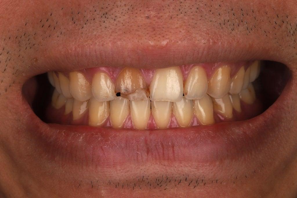 沈志容醫師牙齒美白案例-全瓷冠修復前-門牙因根管治療變色並咬硬物斷裂