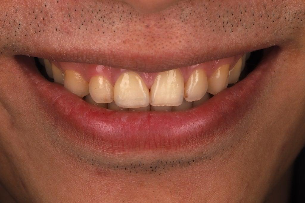 根管治療變色-門牙斷裂-門牙缺角-全瓷冠修復後-桃園牙齒美白案例-沈志容醫師