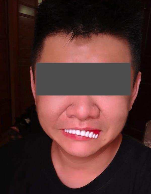 牙齒美白貼片-假牙牙套詐騙