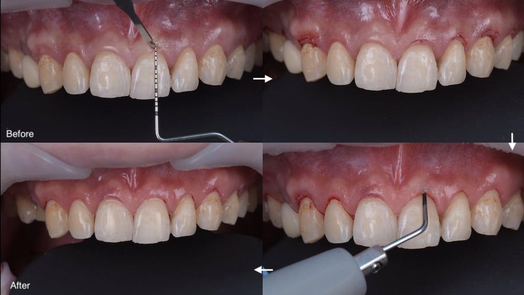 沈志容醫師的瓷牙貼片親身經歷-使用雷射與超音波進行免縫合的微創牙齦手術