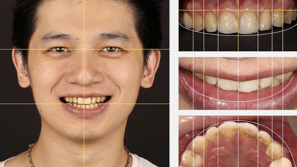 沈志容醫師的瓷牙貼片親身經歷-使用DSD數位微笑設計分析牙齒位置唇型與臉型比例