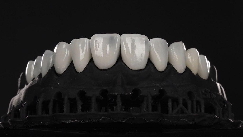沈志容醫師的瓷牙貼片親身經歷-將瓷牙貼片置於牙齒模型確認密合度與對稱性