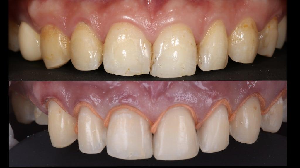 沈志容醫師的瓷牙貼片親身經歷-牙齒經顯微微創修磨的前後比較照片
