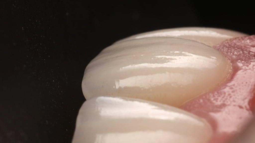 沈志容醫師的瓷牙貼片親身經歷-瓷牙貼片擬真有如真牙-表面有通透感
