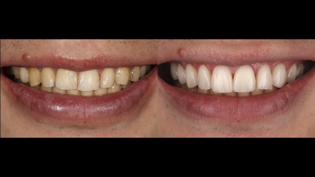 沈志容醫師的瓷牙貼片親身經歷-瓷牙貼片治療前後比較圖