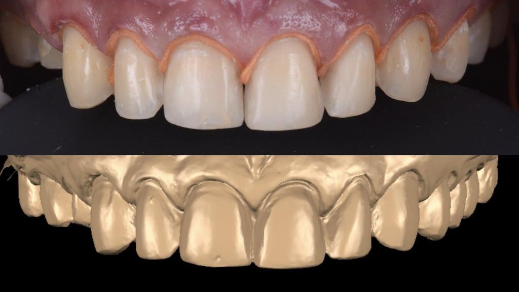沈志容醫師的瓷牙貼片親身經歷-經顯微微創修磨後的牙齒與掃描後的數位模型
